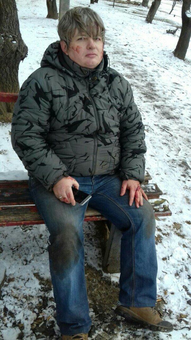 """Их было двое, напали сзади"": в Харькове избили музыканта и активиста Евромайдана Василия Рябко, фото-1"