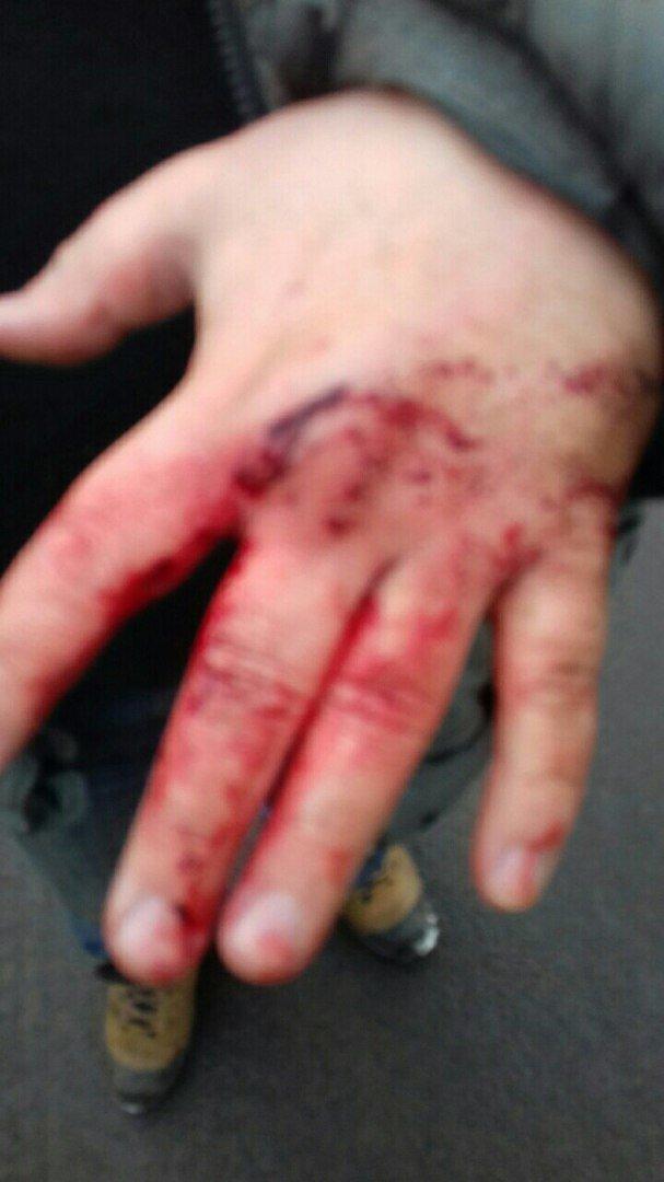 """Их было двое, напали сзади"": в Харькове избили музыканта и активиста Евромайдана Василия Рябко, фото-2"