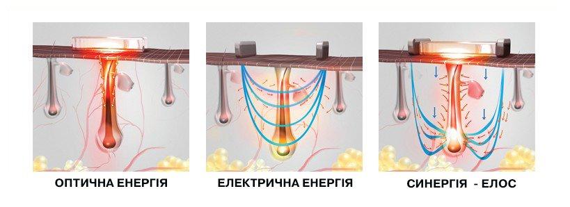 sinergiya_елос