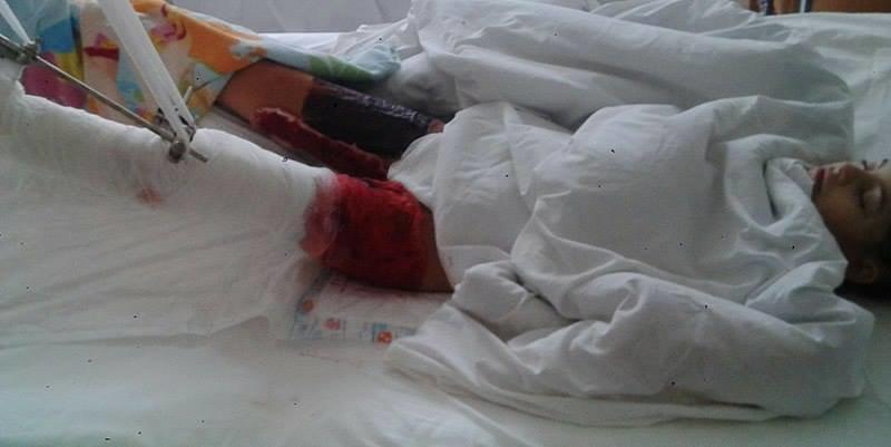 Ужгородка Аніта Білей, прикута до ліжка через недбалість комунальників, святкує 12-річчя: фото, фото-3