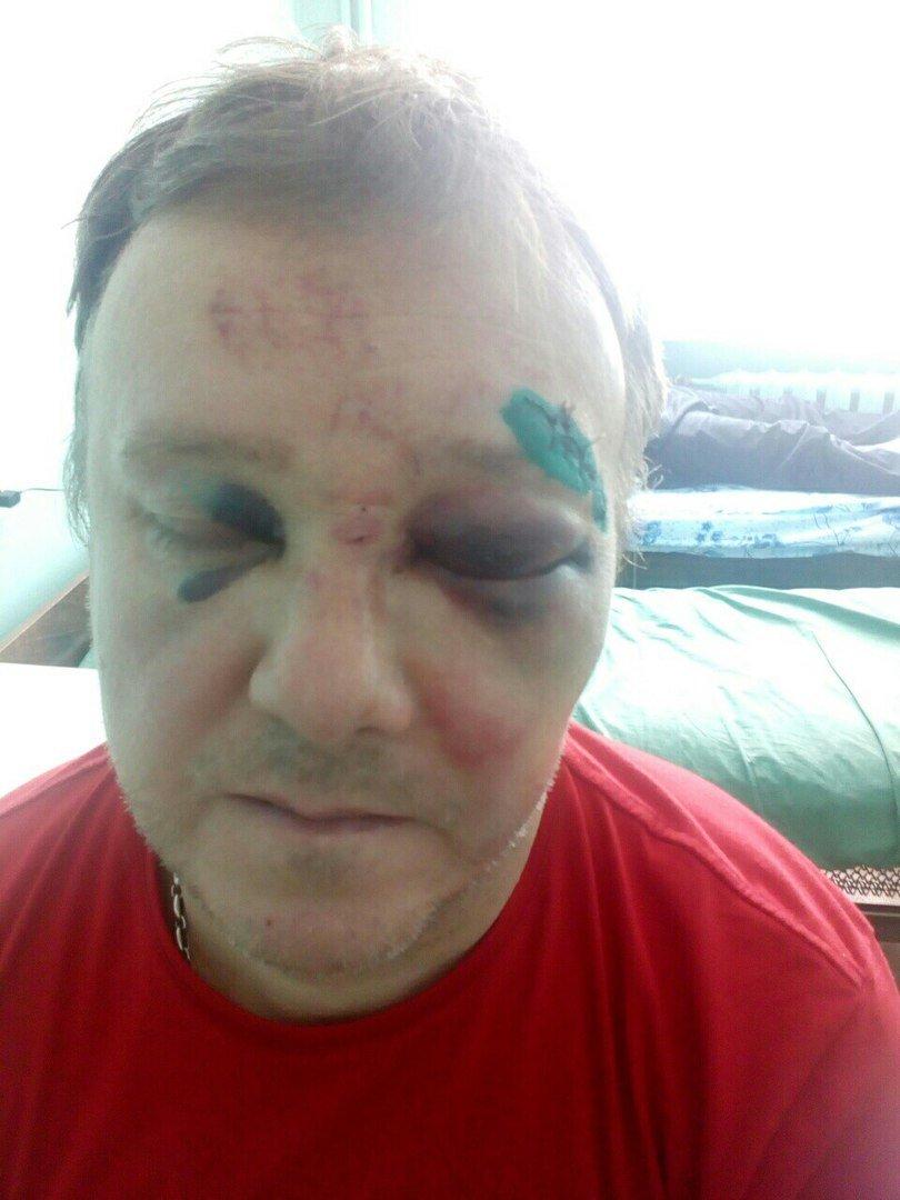В Сумах водитель зампрокурора жестоко избил соседа (ФОТО), фото-1