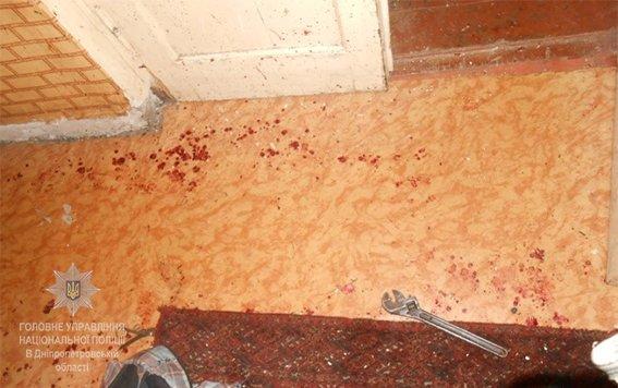 Житель Каменского пострадал от взрыва неизвестного устройства, фото-3