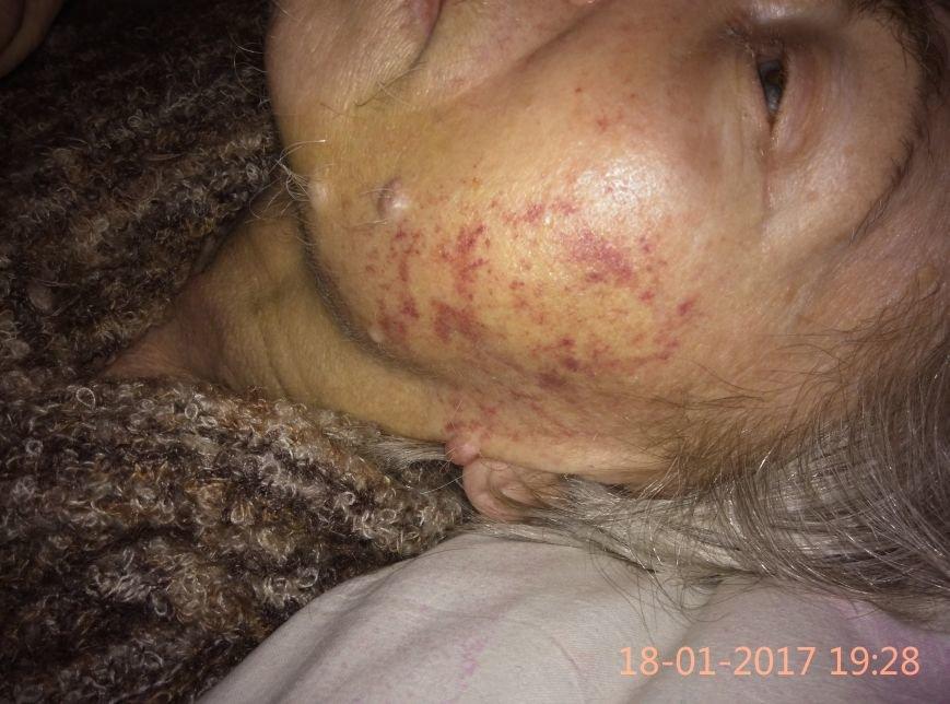 Одесситка обнаружила свою больную бабушку избитой в психдиспансере (ФОТО), фото-1