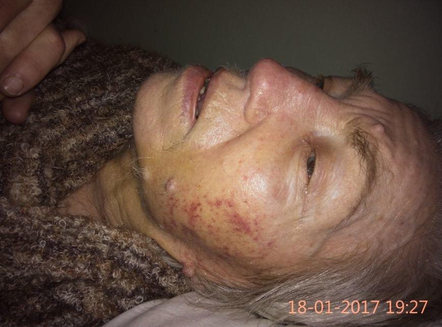 Одесситка обнаружила свою больную бабушку избитой в психдиспансере (ФОТО), фото-2