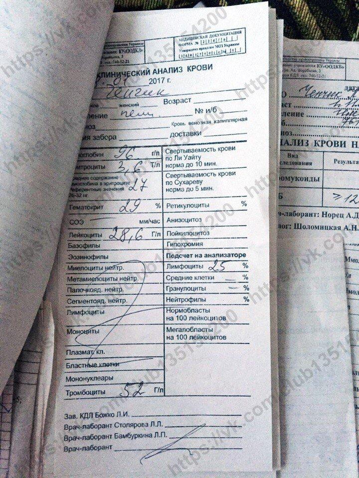 Двухлетнюю кроху из Одессы сразил лейкоз (ФОТО, ДОКУМЕНТЫ), фото-16