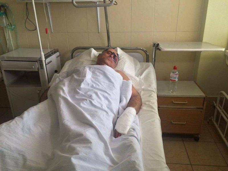 Жестоко избит глава Раздельнянского райсовета Феликс Сигал -  кому перешел дорогу районный политик, фото-2