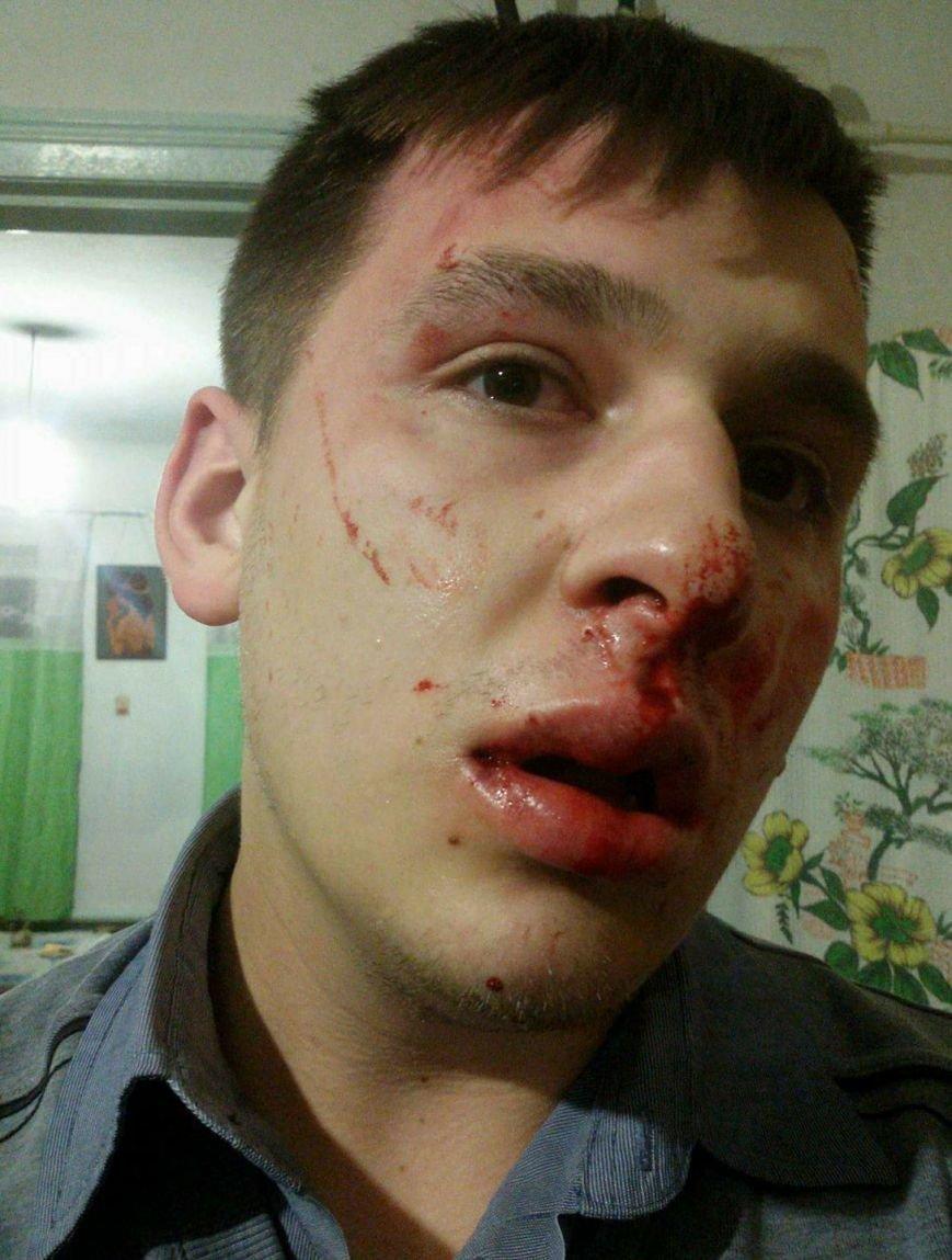 Директор коммунального телеканала в Кривом Роге заявила об избиении журналиста (ФОТО 18+), фото-2