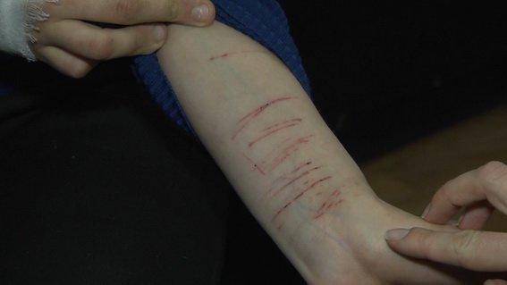 В Киеве школьницы пытались покончить собой после приказа в соцсетях (ФОТО), фото-4