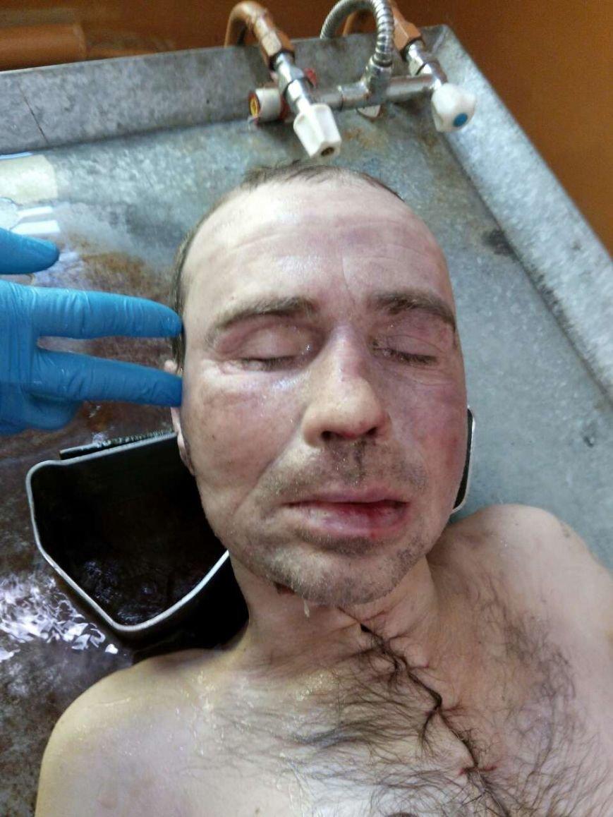 В Черниговской области нашли неизвестного самоубийцу. Полиция просит помочь в опознании, фото-1