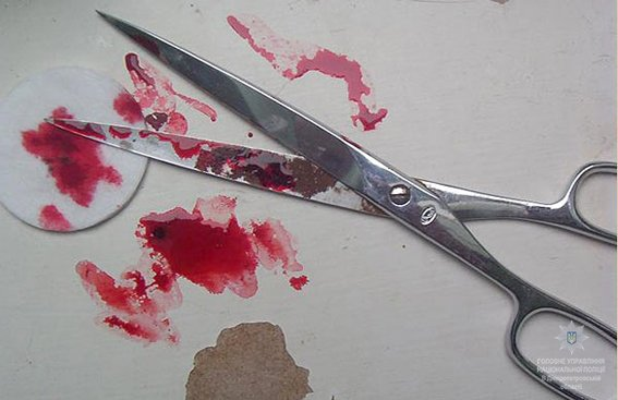 Криворожанин нанес знакомой 4 удара ножницами в живот (ФОТО), фото-3