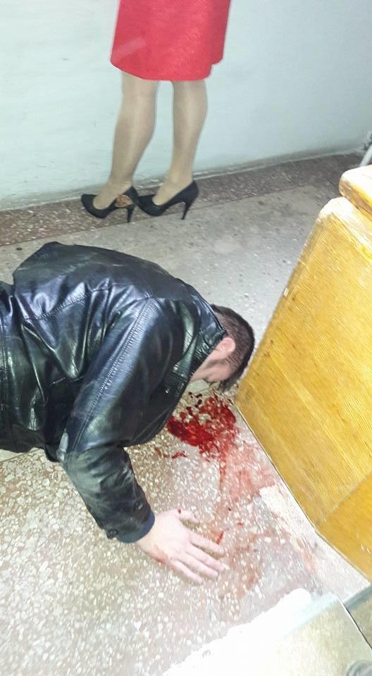 В Конотопському міськвиконкомі сталася бійка з наслідками, фото-2