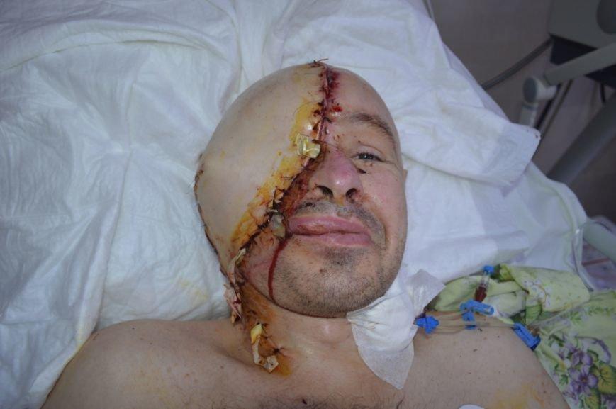 Уникальная операция: в Киеве медики пересадили мужчине пол-лица (ФОТО), фото-3