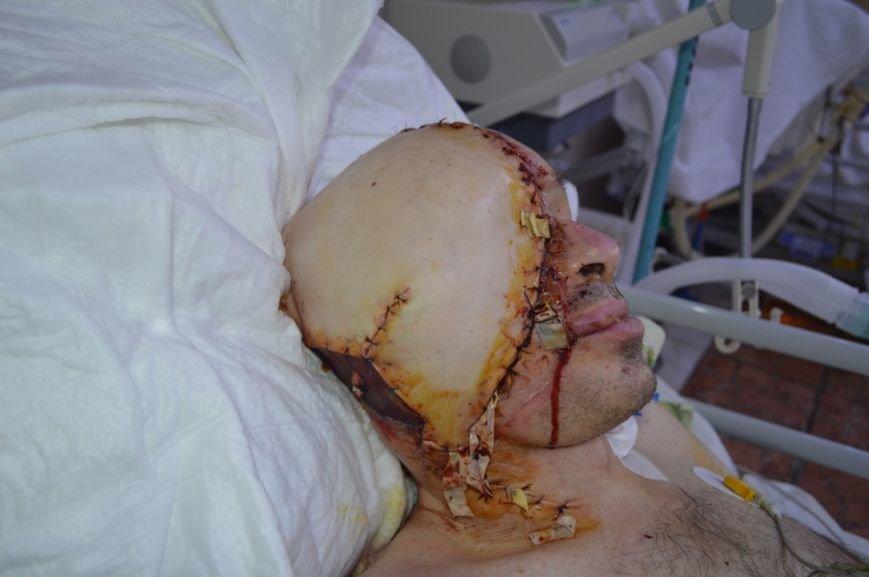 Уникальная операция: в Киеве медики пересадили мужчине пол-лица (ФОТО), фото-5
