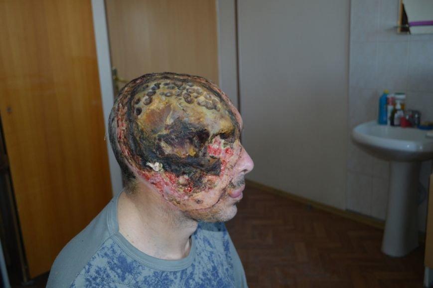 Уникальная операция: в Киеве медики пересадили мужчине пол-лица (ФОТО), фото-1