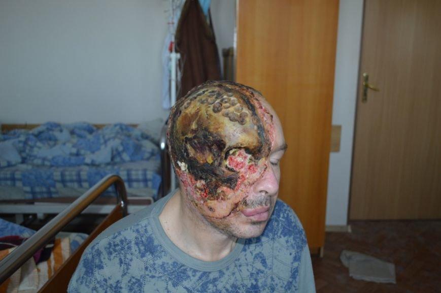 Уникальная операция: в Киеве медики пересадили мужчине пол-лица (ФОТО), фото-2