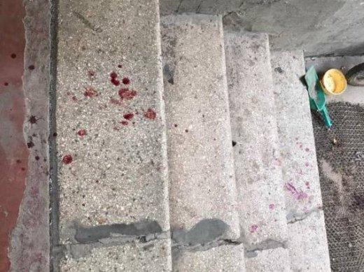 """У Берегові 35-річний чоловік під час """"п'янки"""" порізав шию своєму співмешканцю: фото, фото-3"""