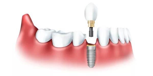Имплантация зубов - больно ли это, фото-1