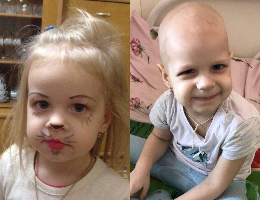 Стань причиной сохраненной жизни: в Днепре спасают 3-летнюю девочку с раком крови (ФОТО, ВИДЕО), фото-1