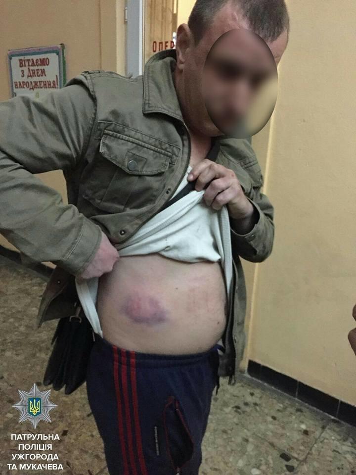 Як патрульні затримували бандитів, які побили і пограбували сімейну пару у Мукачеві: фото, фото-3