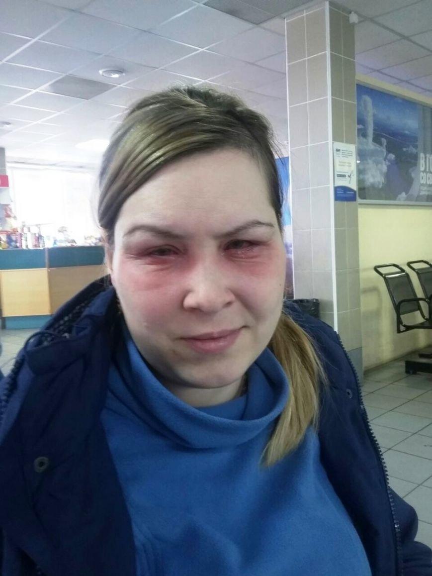 Анна Ем: «Я не останусь слепой!», фото-1