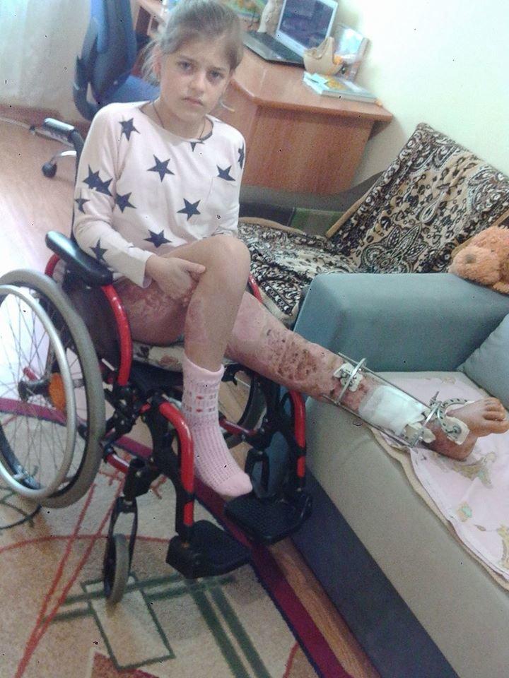 Лікарям вдалося зберегти ноги ужгородської школярки Аніти Білей, на яку впало дерево: фото, фото-2
