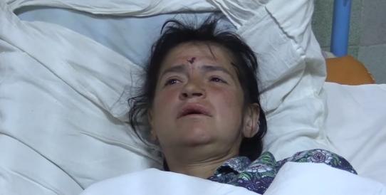 Мы втроем были на остановке, – раненая жительница Авдеевки рассказала об обстреле (ВИДЕО), фото-2