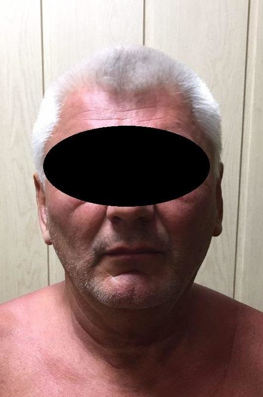 В Мариуполе на пляже задержали 63-летнего извращенца (ФОТО), фото-1