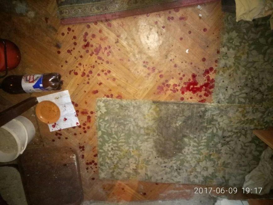 На Харьковщине боец АТО потерял два пальца и едва не погиб при подрыве самодельной взрывчатки (ФОТО), фото-4
