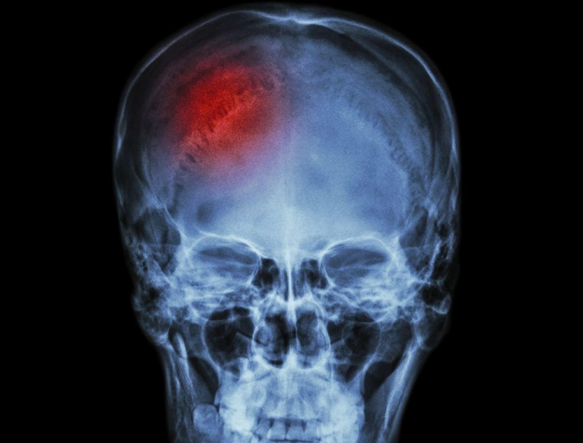 Перелом черепа 2