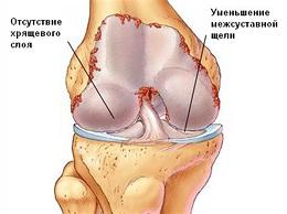 gonarthrosis