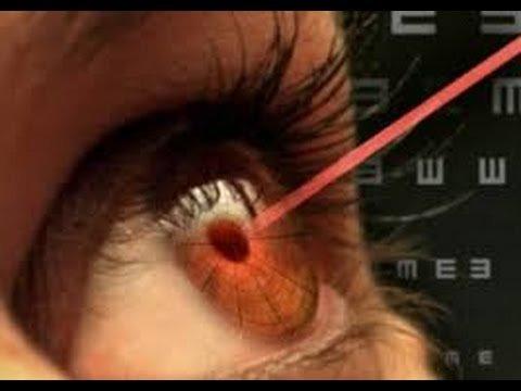 hirurgija-glaza-operacija-lasik-lazernaja-korekcija-zrenija-za-6-minut1388119164-52bd047cd4b24