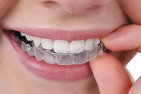 ортодонтия4