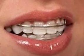 ортодонтия5