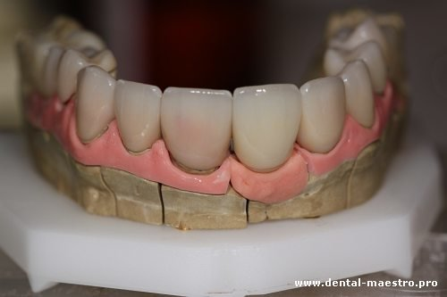 Зуботехническая модель – «Интересная ортопедическая стоматология. Взгляд доктора. Взгляд техника» – Николов В. + Нестеренко А., Украина, г. Донецк, 30 ноября 2013