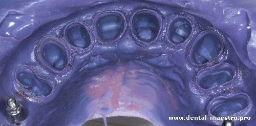 Качественное проснятие уступа до 2мм – «Интересная ортопедическая стоматология. Взгляд доктора. Взгляд техника» – Николов В. + Нестеренко А., Украина, г. Донецк, 30 ноября 2013