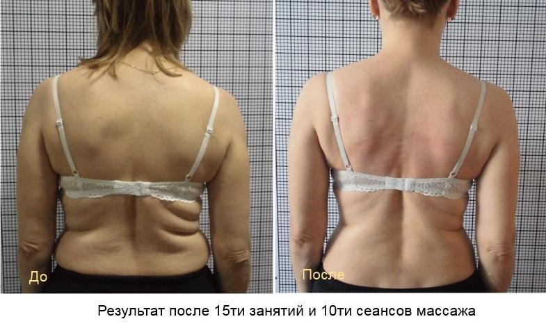 лечение позвоночника в Запорожье1