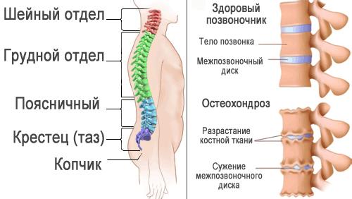 Лечение позвоночника в Запорожье3