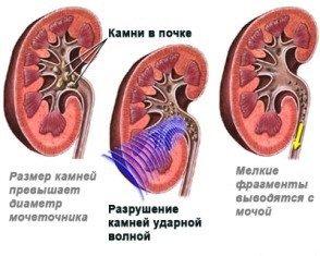 litotripsiya_2i
