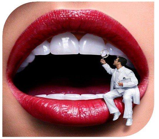 реставрация_зубов