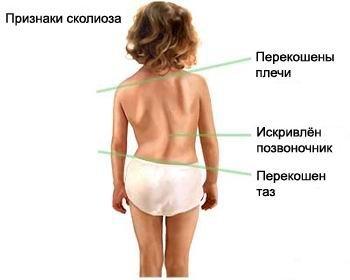 признакискалеоза1