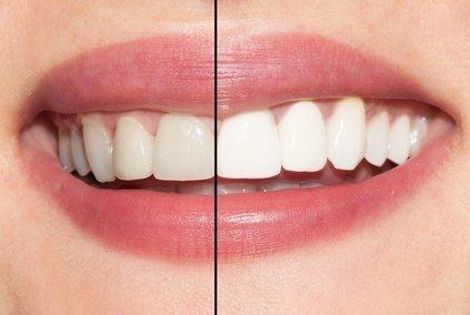 отбеливание зубов кременчуг