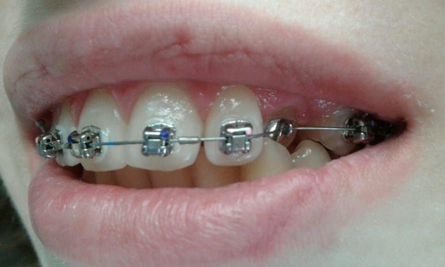 ортодонт2