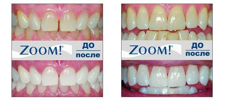 zoom-otbelivanie-zubov