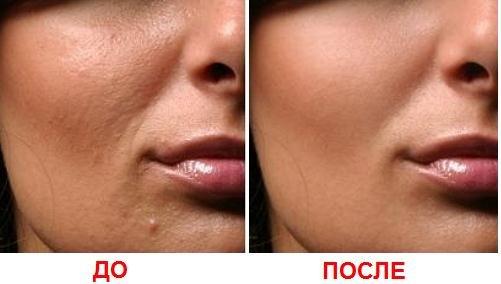 mezoterapija-kozhi-lica-do-posle