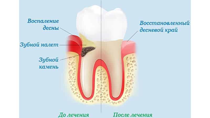 vospalenie-desen-lechenie-simptomi-foto1-gingivit-do-i-posle