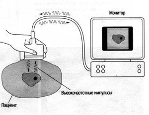 ultrasound01-300x232
