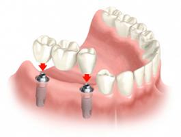 implant-zybij-7